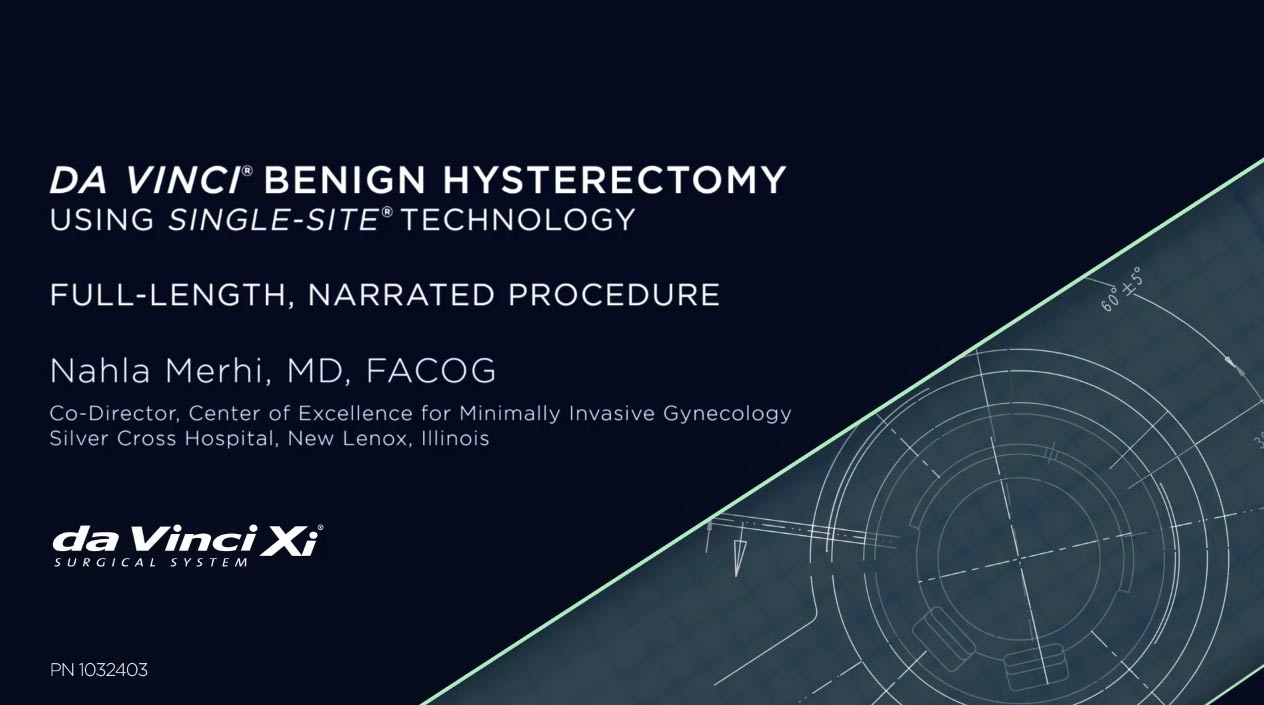 Da Vinci Benign Hysterectomy | Nahla Merhi, M.D.